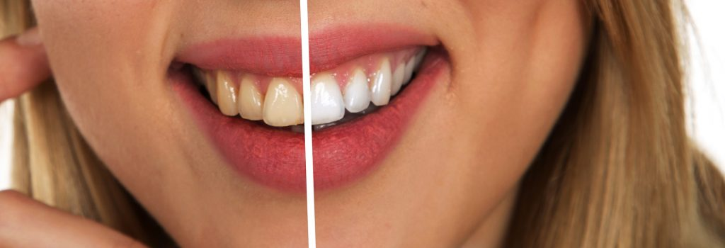 Dental imperfections